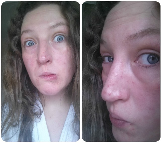 problem skin collage